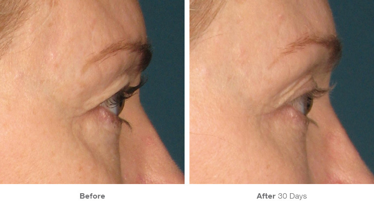 img_template_beforeafter_brow2