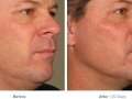 before_after_ultherapy_results_full-face11