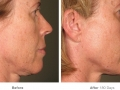 before_after_ultherapy_results_full-face15