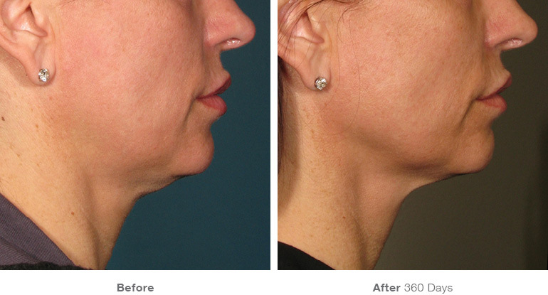 before_after_ultherapy_results_under-chin4