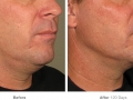 before_after_ultherapy_results_under-chin12
