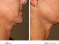 before_after_ultherapy_results_under-chin8